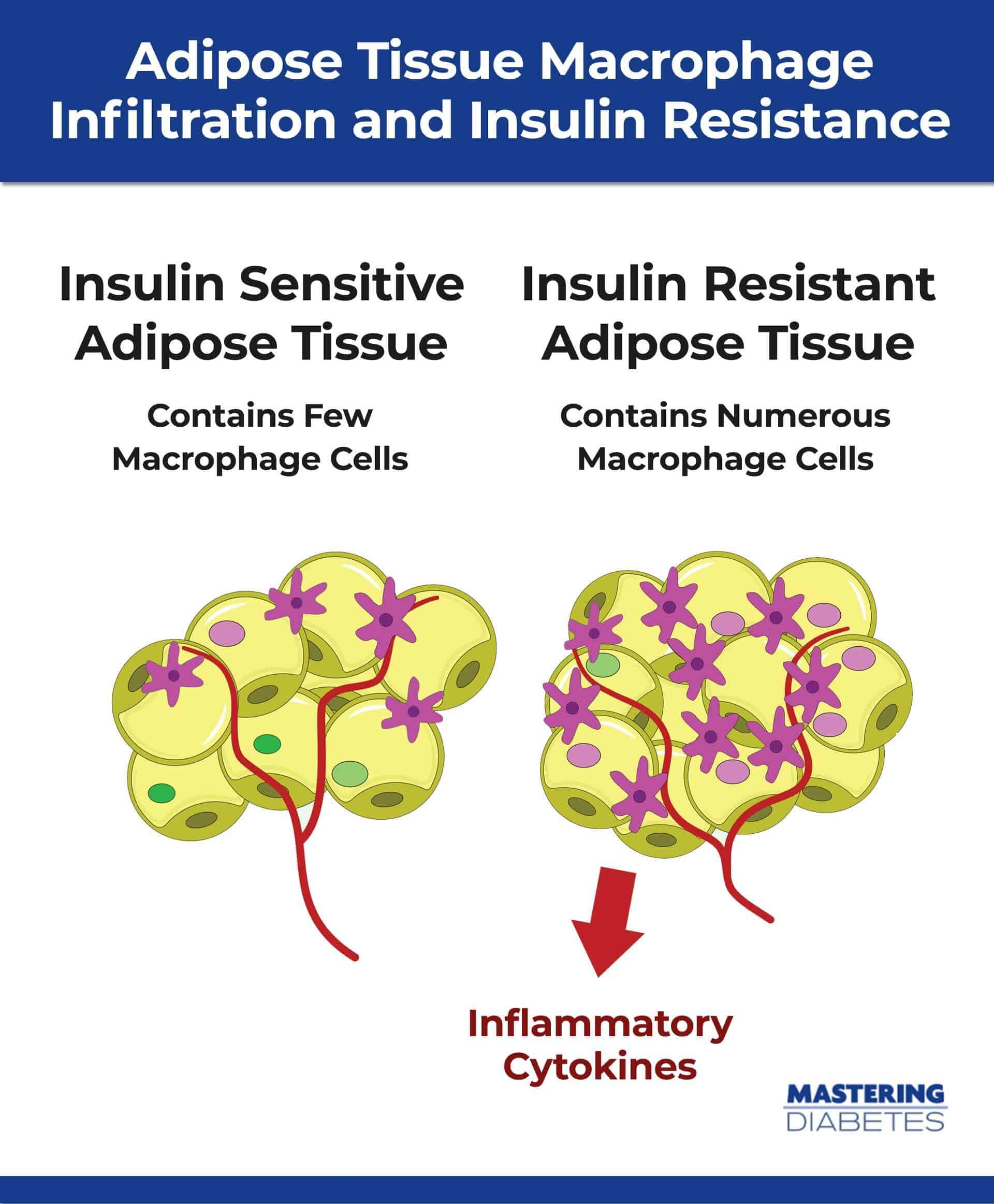 Macrophage Infiltration Insulin Resistance Diet