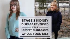 Stage 3 Kidney Disease